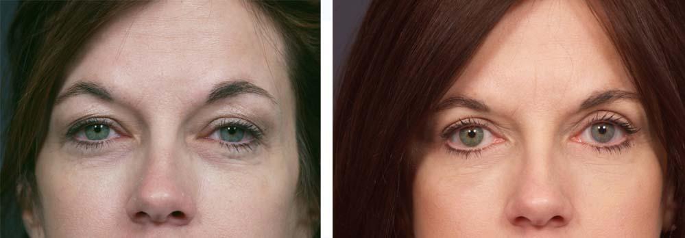 Eyelid Surgery Patient 1 | Dr. Shaun Parson Plastic Surgery Scottsdale Arizona
