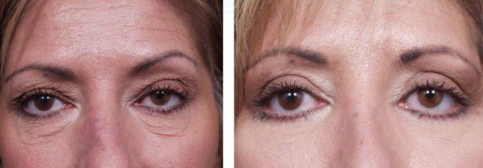 Eyelid Surgery Patient 2 | Dr. Shaun Parson Plastic Surgery Scottsdale Arizona