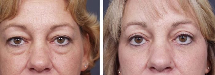 Eyelid Surgery Patient 3 | Dr. Shaun Parson Plastic Surgery Scottsdale Arizona