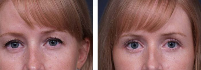 Eyelid Surgery Patient 4   Dr. Shaun Parson Plastic Surgery Scottsdale Arizona