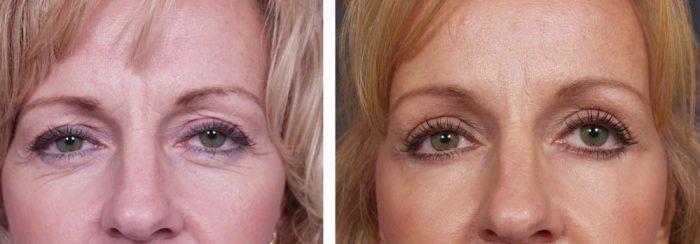 Eyelid Surgery Patient 5   Dr. Shaun Parson Plastic Surgery Scottsdale Arizona