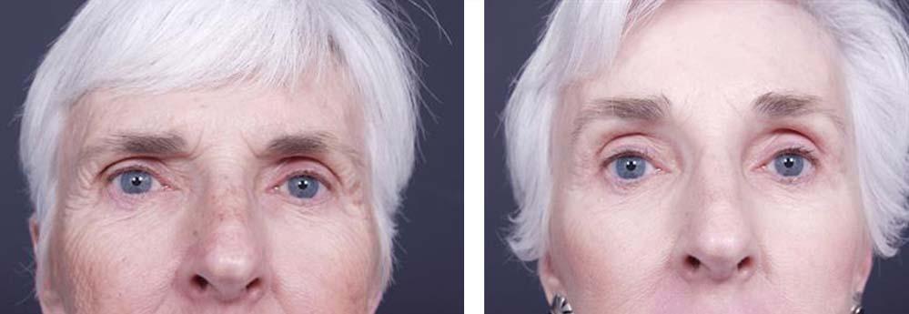 Facelift Patient 1a | Dr. Shaun Parson Plastic Surgery Scottsdale Arizona