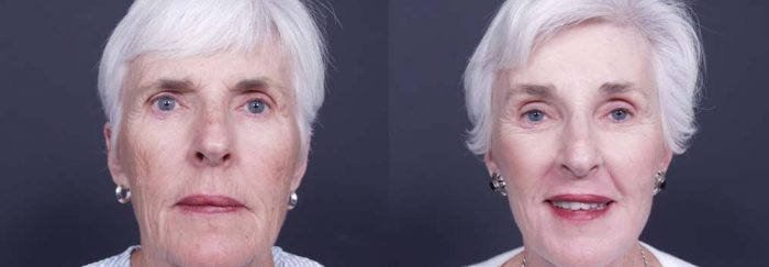 Facelift Patient 1a | Dr. Shaun Parson Plastic Surgery Scottsdale Arizona