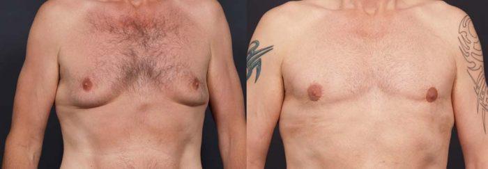 Gynecomastia Patient 5a | Dr. Shaun Parson Plastic Surgery Scottsdale Arizona