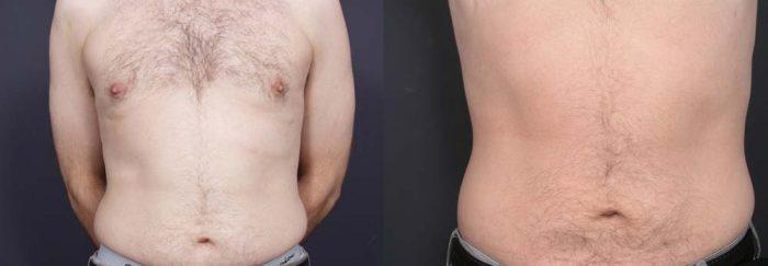 Liposuction Patient 1a | Dr. Shaun Parson Plastic Surgery Scottsdale Arizona