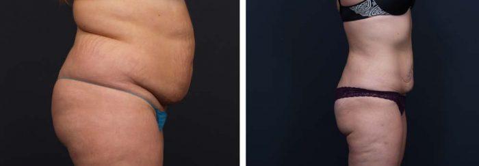Liposuction Patient 6 | Dr. Shaun Parson Plastic Surgery Scottsdale Arizona