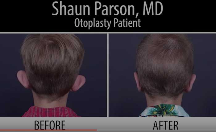 Otoplasty | Dr. Shaun Parson Plastic Surgery Scottsdale