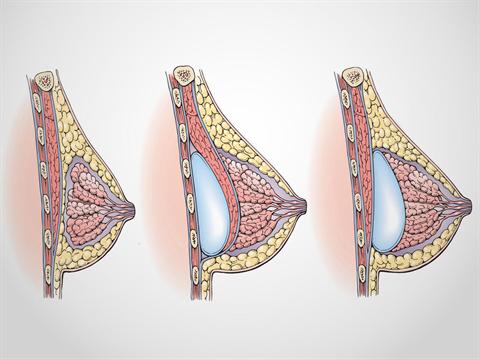 Breast Augmentation Implant Placement | Dr. Shaun Parson Plastic Surgery Scottsdale, AZ