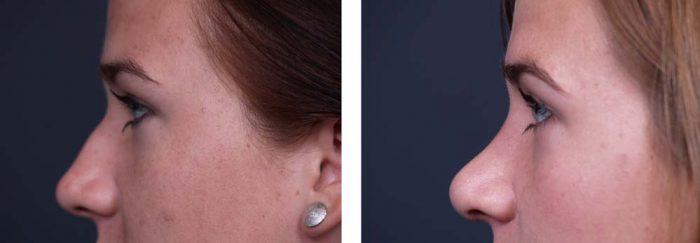 Rhinoplasty Patient 4a | Dr. Shaun Parson Plastic Surgery Scottsdale Arizona