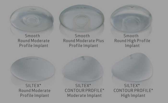 Video FAQ: Breast Augmentation - How Long Will It Last?   Dr. Shaun Parson Plastic Surgery Scottsdale