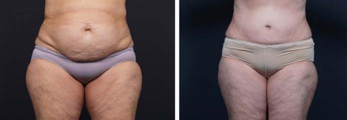 Tummy Tuck Patient 10a | Dr. Shaun Parson Plastic Surgery Scottsdale Arizona