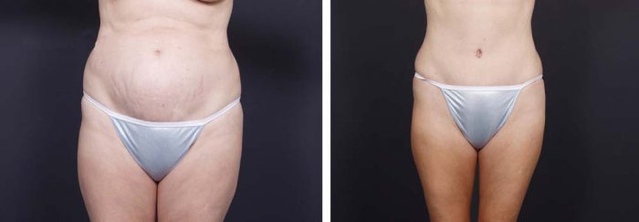 Tummy Tuck Patient 11a | Dr. Shaun Parson Plastic Surgery Scottsdale Arizona