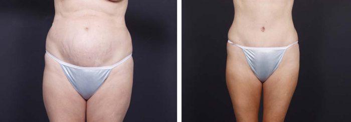 Tummy Tuck Patient 11a | Dr. Shaun Parson Plastic Surgery Scottsdale Arizona
