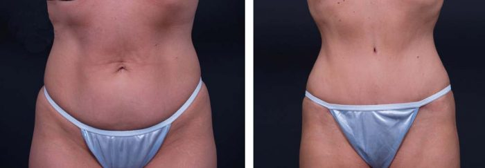 Tummy Tuck Patient 12a | Dr. Shaun Parson Plastic Surgery Scottsdale Arizona