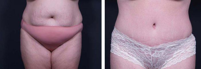 Tummy Tuck Patient 13a | Dr. Shaun Parson Plastic Surgery Scottsdale Arizona