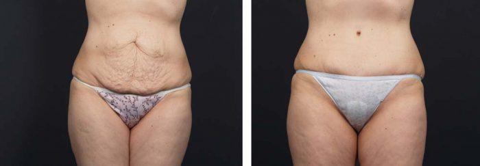 Tummy Tuck Patient 14a | Dr. Shaun Parson Plastic Surgery Scottsdale Arizona