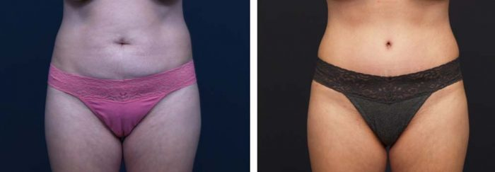 Tummy Tuck Patient 15a | Dr. Shaun Parson Plastic Surgery Scottsdale Arizona