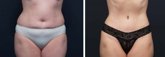 Tummy Tuck Patient 16a | Dr. Shaun Parson Plastic Surgery Scottsdale Arizona