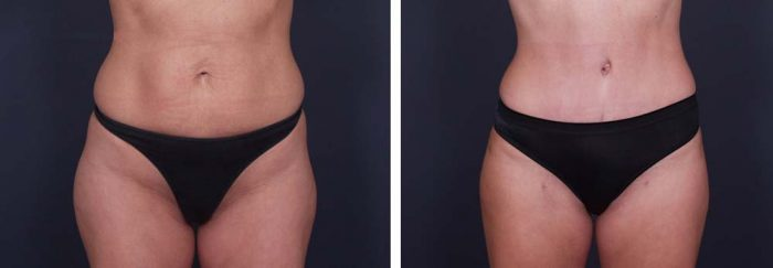 Tummy Tuck Patient 1a | Dr. Shaun Parson Plastic Surgery Scottsdale Arizona
