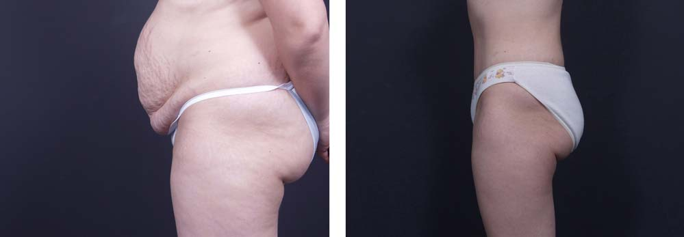 Tummy Tuck Patient 4a | Dr. Shaun Parson Plastic Surgery Scottsdale Arizona