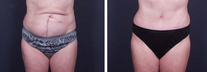 Tummy Tuck Patient 5a | Dr. Shaun Parson Plastic Surgery Scottsdale Arizona