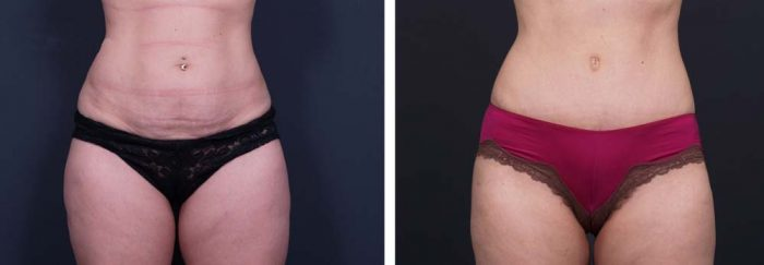 Tummy Tuck Patient 9a | Dr. Shaun Parson Plastic Surgery Scottsdale Arizona
