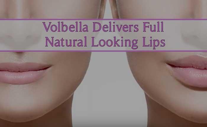 Volbella Lip Filler | Dr. Shaun Parson Plastic Surgery