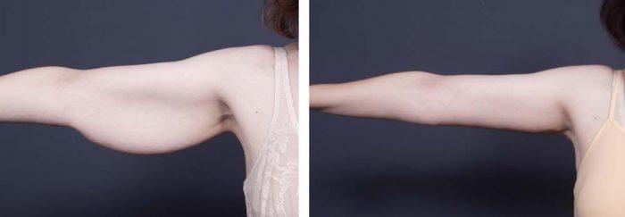Arm Lift Surgery | Dr. Shaun Parson Plastic Surgery Scottsdale Arizona