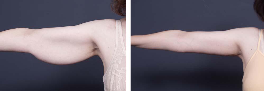 Arm Lift Surgery   Dr. Shaun Parson Plastic Surgery Scottsdale Arizona
