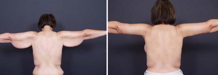 Arm Lift Surgery Photos | Dr. Shaun Parson Plastic Surgery Scottsdale Arizona