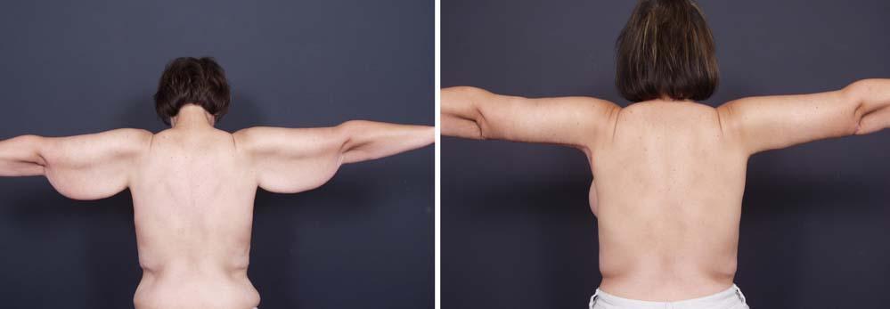 Arm Lift Surgery Photos   Dr. Shaun Parson Plastic Surgery Scottsdale Arizona