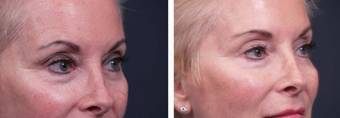 Botox Patient 1 | Dr. Shaun Parson Plastic Surgery Scottsdale Arizona