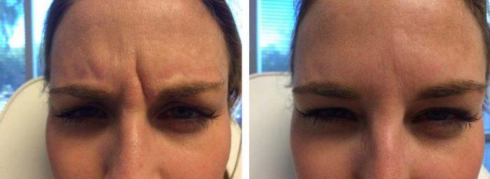 Botox and Filler Patient 2   Dr. Shaun Parson Plastic Surgery Scottsdale Arizona