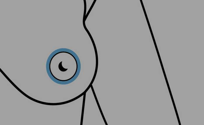 Types of Breast Lifts | Dr. Shaun Parson Plastic Surgery Scottsdale