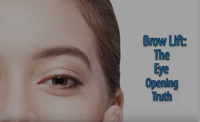 Brow lift | Dr. Shaun Parson Plastic Surgery Scottsdale