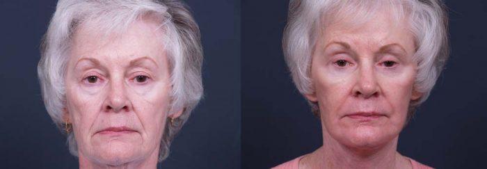 facelift patient 3a   Dr. Shaun Parson Plastic Surgery Scottsdale Arizona