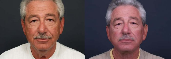 facelift patient 4a   Dr. Shaun Parson Plastic Surgery Scottsdale Arizona