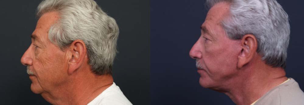 facelift patient 4a | Dr. Shaun Parson Plastic Surgery Scottsdale Arizona