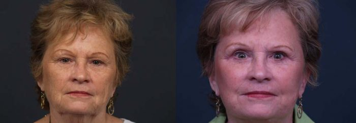 facelift patient 7a + browlift | Dr. Shaun Parson Plastic Surgery Scottsdale Arizona