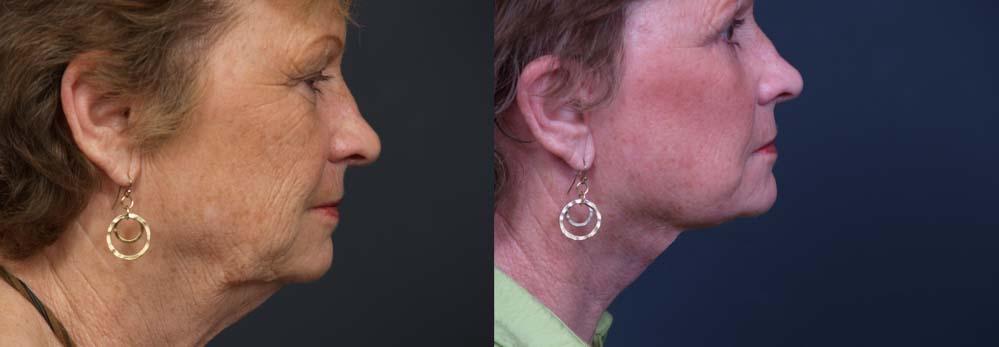 facelift patient 7a + browlift | Dr. Shaun Parson Plastic Surgery Scottsdale Arizona