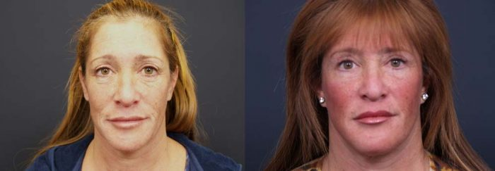 facelift patient 8a | Dr. Shaun Parson Plastic Surgery Scottsdale Arizona
