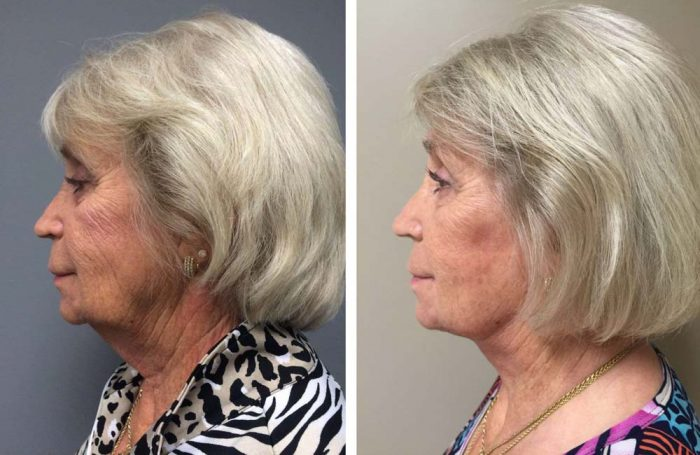 facelift9 | Dr. Shaun Parson Plastic Surgery Scottsdale Arizona