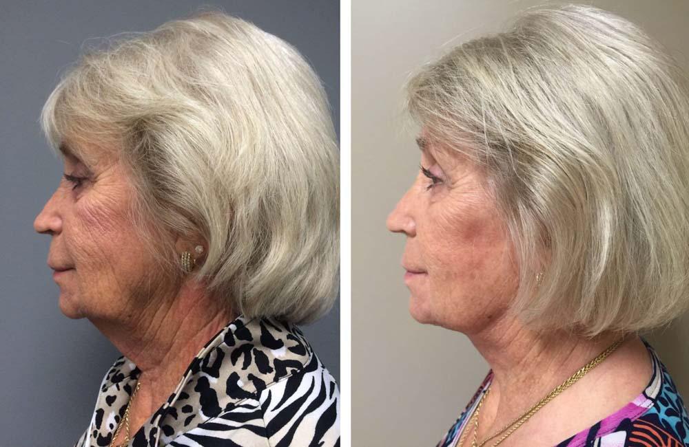 facelift9 | Dr. Shaun Parson Plastic Surgery Scottsdale Arizona