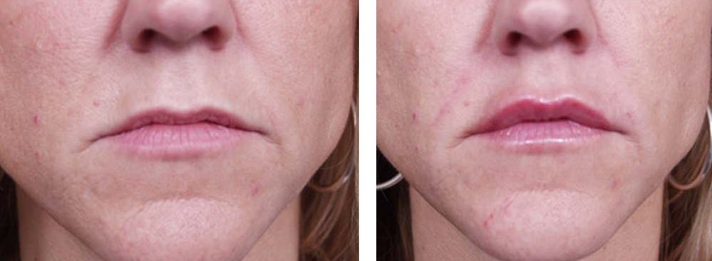 Dermal Filler Patient 3 | Dr. Shaun Parson Plastic Surgery Scottsdale Arizona