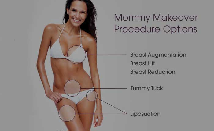 Mommy Makeover | Dr. Shaun Parson Plastic Surgery Scottsdale