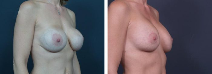 Breast Revision Patient 1 | Dr. Shaun Parson Plastic Surgery, Scottsdale, Arizona
