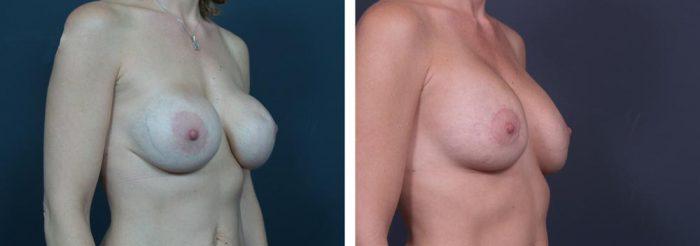 Breast Revision Patient 1 | Dr. Shaun Parson Plastic Surgery, Scottsdale, Arizona