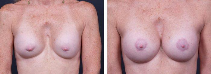 Breast Revision Patient 2 | Dr. Shaun Parson Plastic Surgery, Scottsdale, Arizona