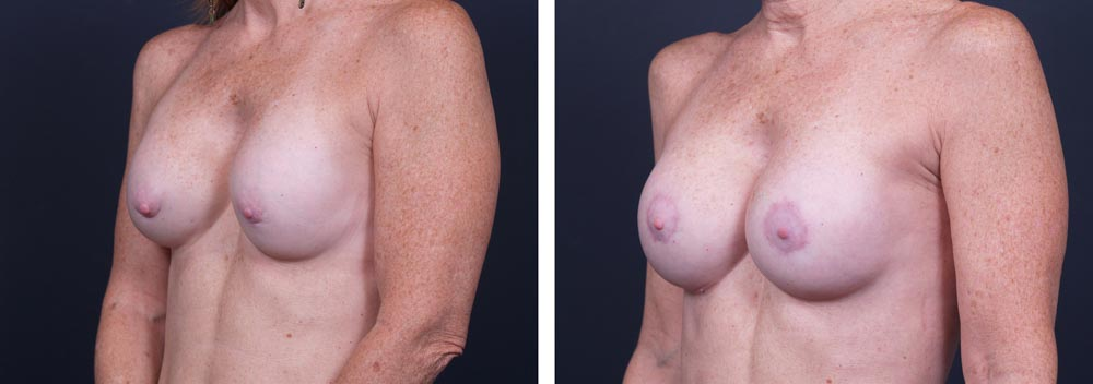 Breast Revision Patient 2 | Dr. Shaun Parson Plastic Surgery, Scottsdale, Arizona