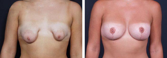 Breast Revision Patient 3 | Dr. Shaun Parson Plastic Surgery, Scottsdale, Arizona